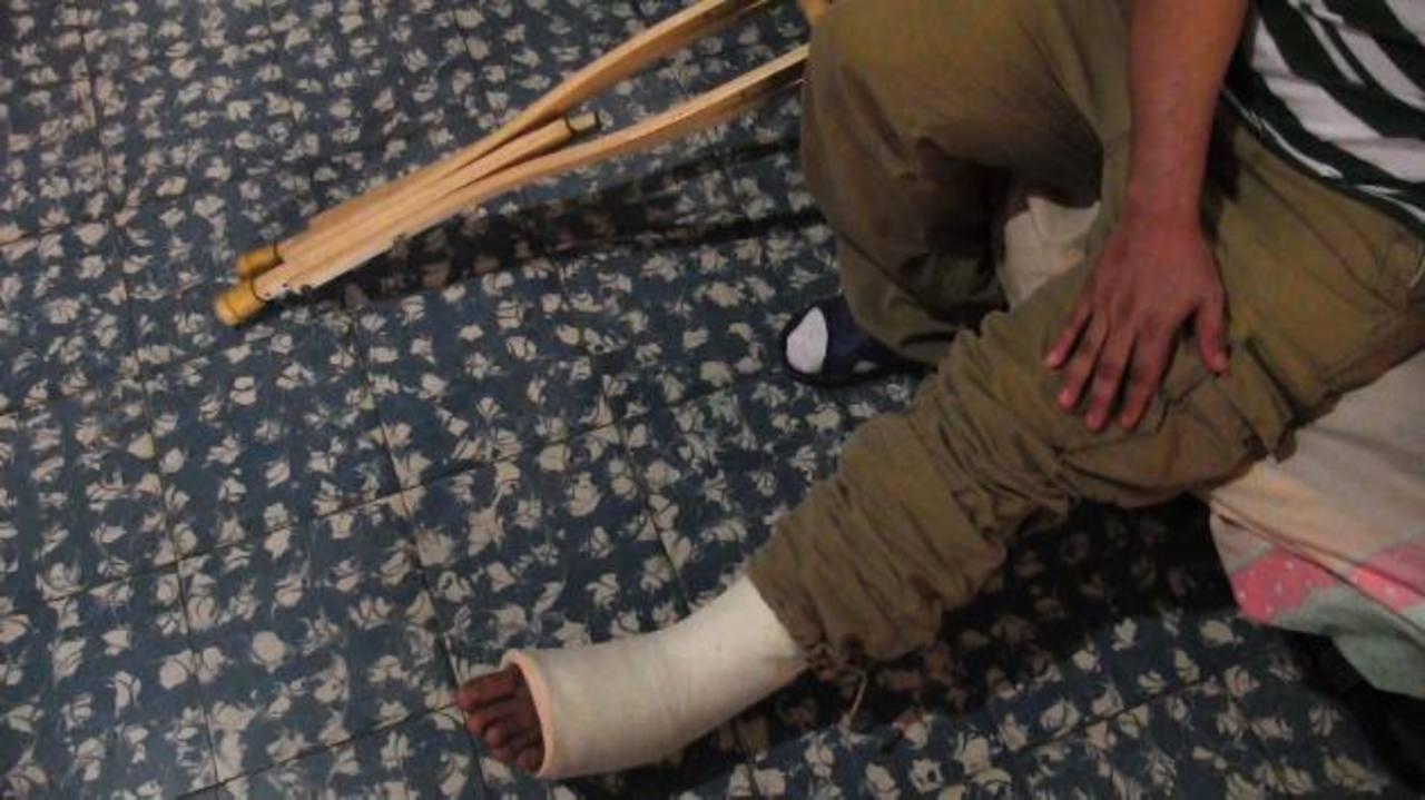Los pandilleros lo torturaron e hirieron de bala en su pierna, incluso le fracturaron la tibia y el peroné. Foto EDH / MARVIN ROMERO