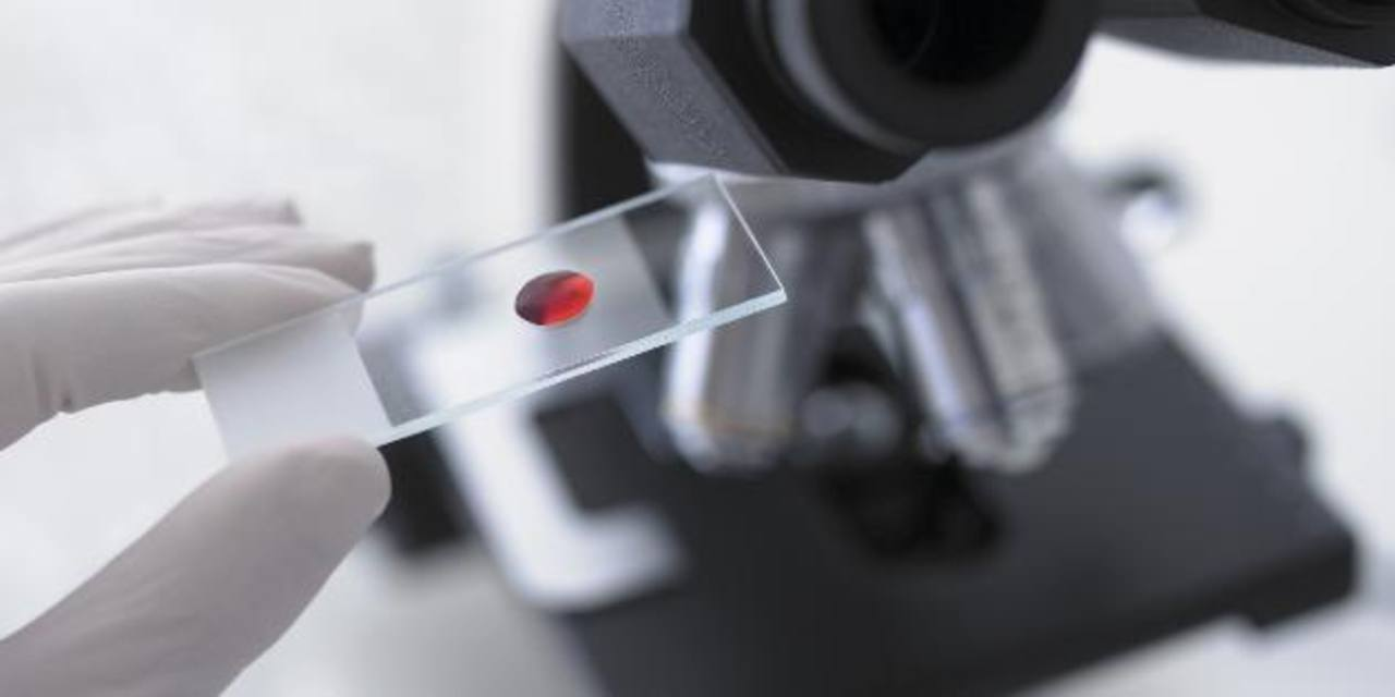 El descubrimiento puede permitir abrir nuevas vías destinadas a un tratamiento individualizado para los pacientes. foto