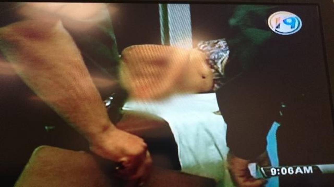 El padre de las niñas fue linchado por sus vecinos que intervinieron en la agresión en una casa de Cuscatancingo. Fue hospitalizado bajo custodia policial. Foto EDH / Cortesía Megavisión