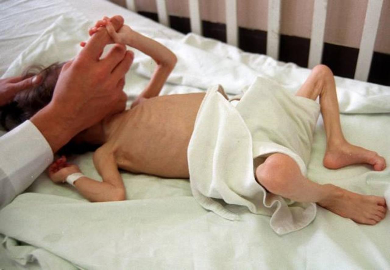 La mayor parte de la población afectada por desnutrición son niños.