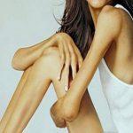 Mujer anoréxica en EE.UU. pide ayuda en internet para salvar su vida