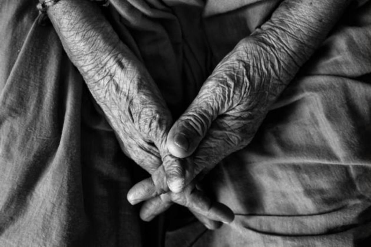 El síndrome Werner, un desorden genético que provoca que la gente envejezca más rápido de lo normal. Foto EDH