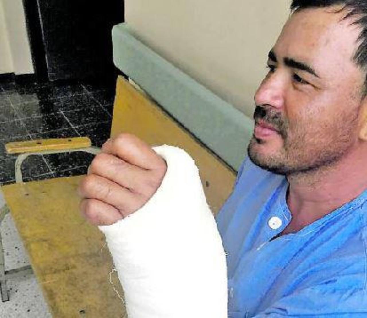 Reimplantan mano a salvadoreño en Costa Rica