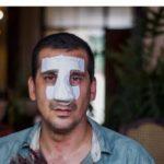 Antonio Rodiles, coordinador del Foro por los Derechos y Libertades, golpeado por el régimen. foto edh /www.martinoticias.com