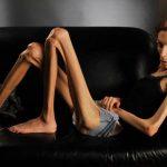 La sorprendente transformación de la mujer que pidió ayuda para superar anorexia