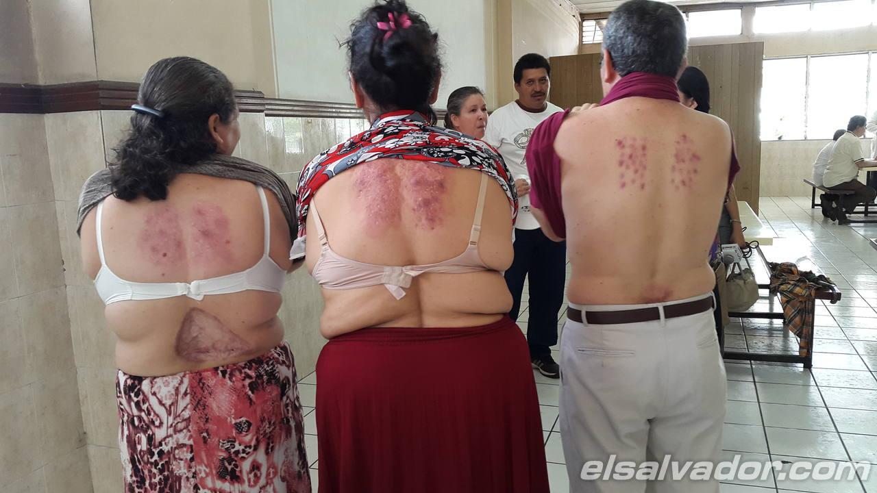 Pacientes  operados muestran la  espalda, donde les aplicaban la vacuna.