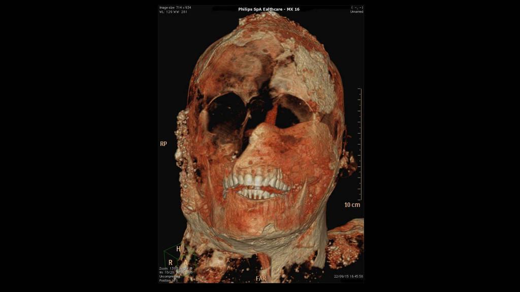 Tomografía axial computarizada de una de las momias de Pompeya