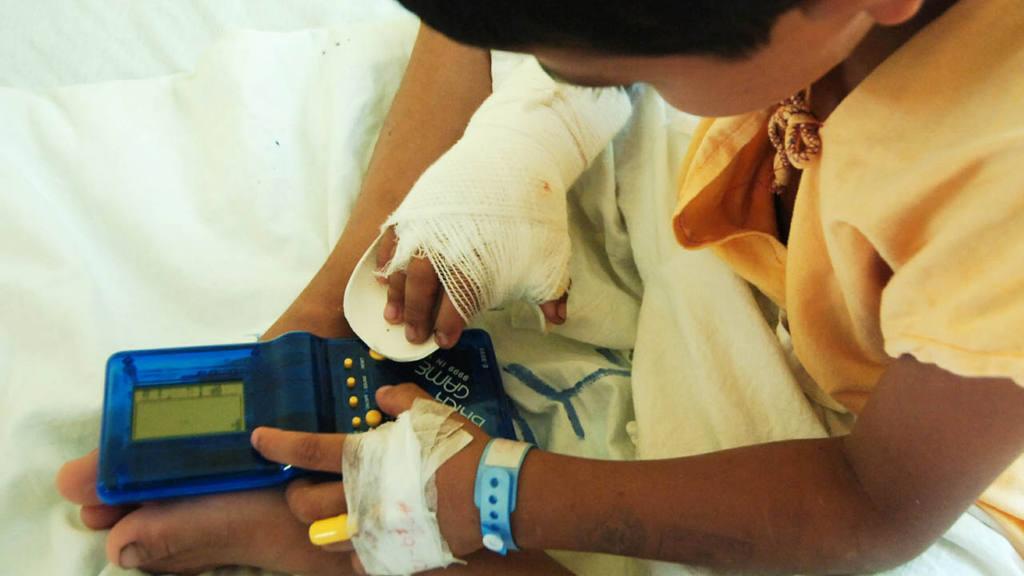 Quemados polvora Hospital Nacional Benjamin Bloom