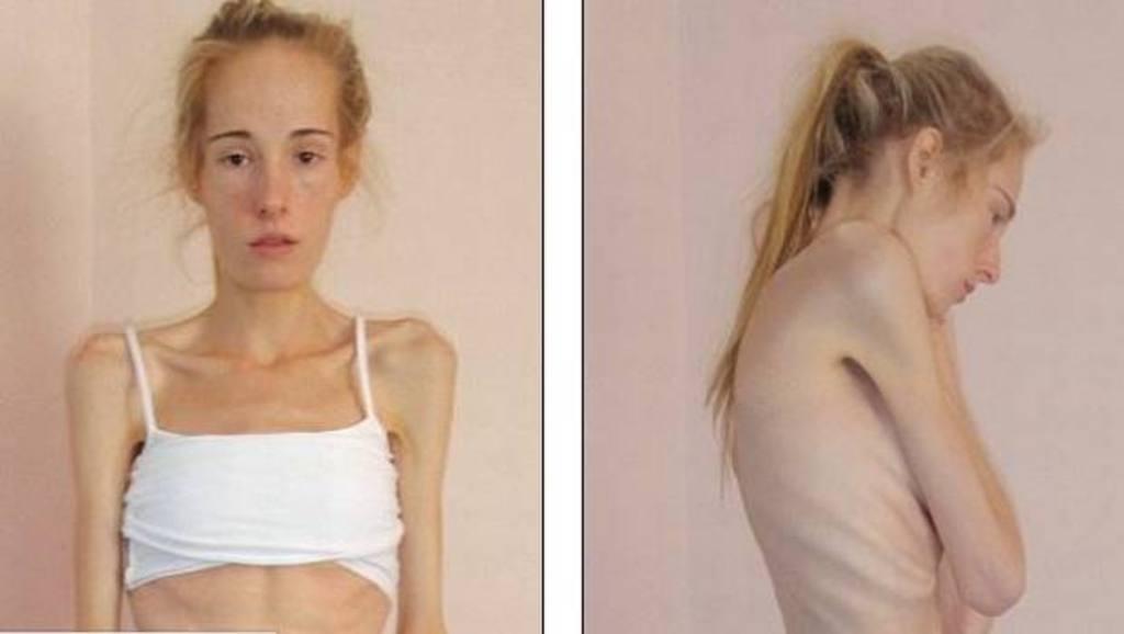 Gemma Walker se recuperó de anorexia y bulimia