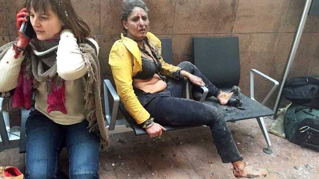 Ambas mujeres resultaron heridas a raíz de las explosiones provocadas por yihadistas en el Aeropuerto de Zaventem, en Bruselas, uno de los más concurridos de Europa. foto edh/Georgian Public Broadcasterfoto y el fotógrafo Ketevan Kardava.