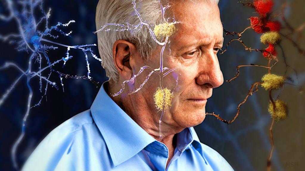 Resultado de imagen para Estos son los síntomas del alzheimer