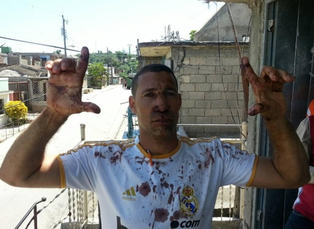 El activista Yriade Hernández Aguilera después de su liberación.