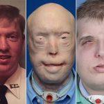 El paciente fue Patrick Hardison, de 41 años-