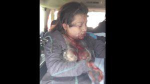 Imágenes sensibles: Mujer amputada de ambas manos tras explotarle una granada cuando cobraba una extorsión