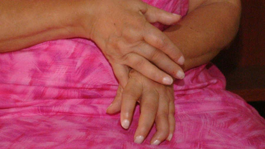 Perdida de peso por artritis reumatoide