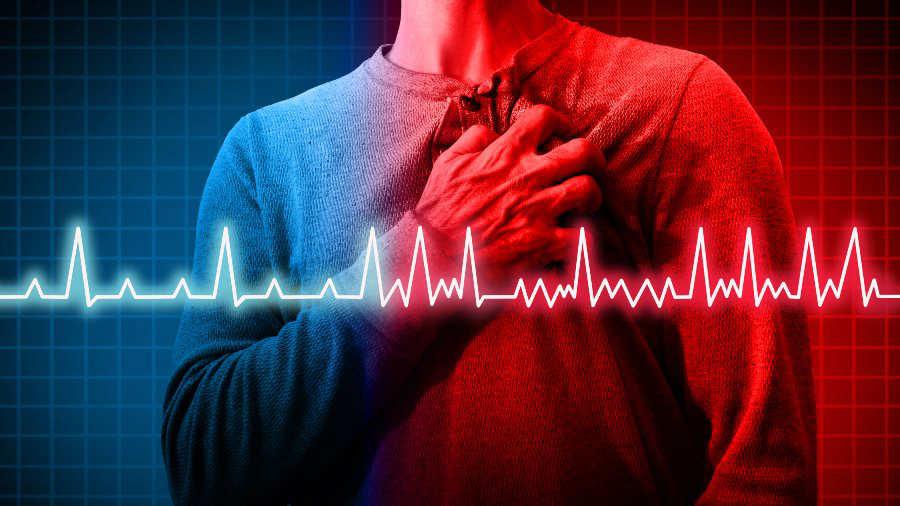 Por palpitaciones ansiedad irregulares