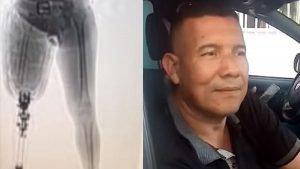 Político colombiano intentó viajar con 7 kilos de cocaína escondidos dentro de su prótesis