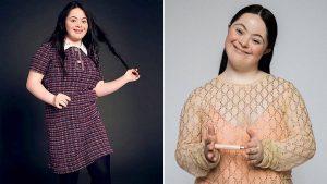 Ellie Goldstein, la modelo con síndrome de Down que es el nuevo rostro de Gucci