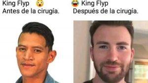 King Flyp se convierte en el rey de los memes por cirugía plástica
