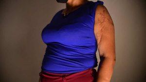 """""""Lo único que recuerdo son los disparos"""". Relato de Gloria, una sobreviviente de la masacre del microbús quemado en Mejicanos"""
